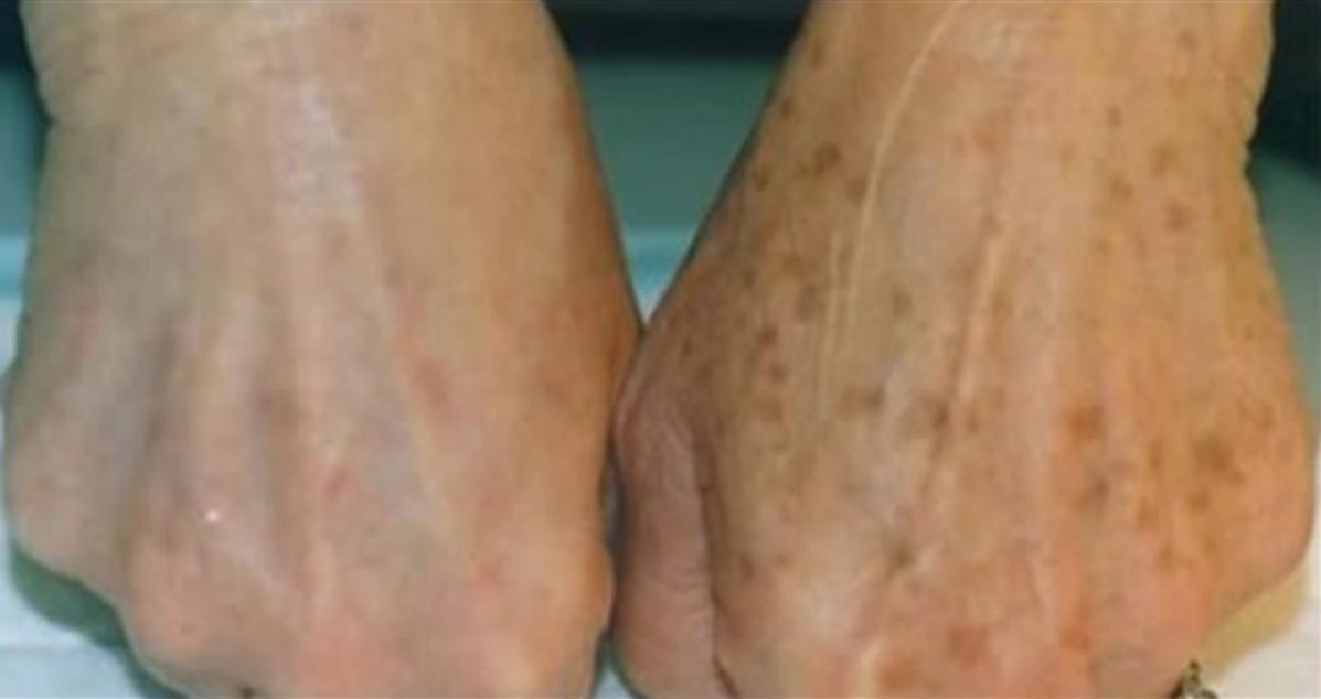 Astuces pour faire partir les taches de vieillesse sur la peau